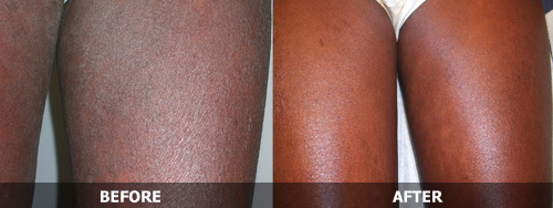 how to use a chinese herbal wash for eczema